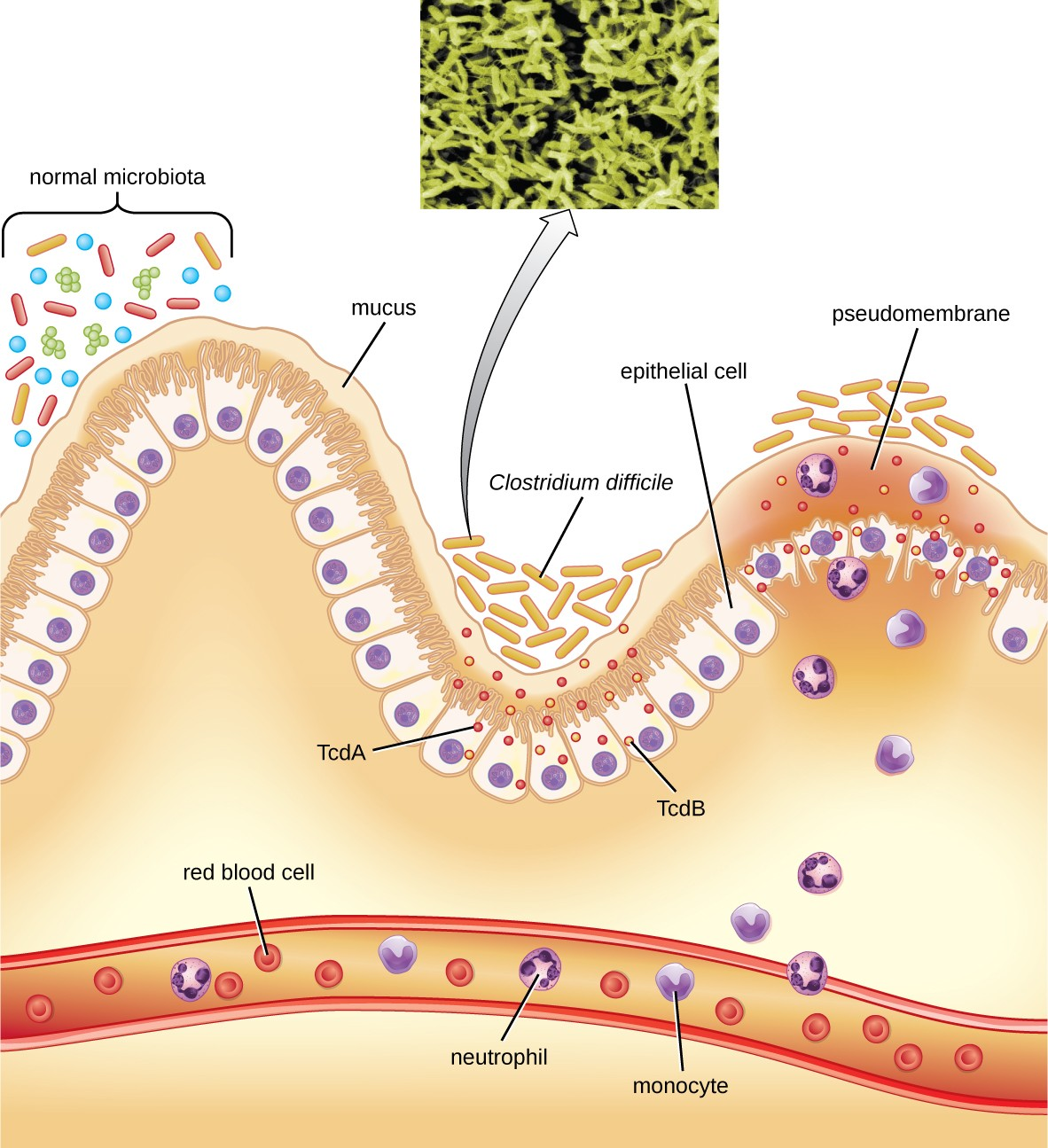 Bacterial Infections Of The Gastrointestinal Tract