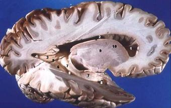 A lateral cross-section of the human brain