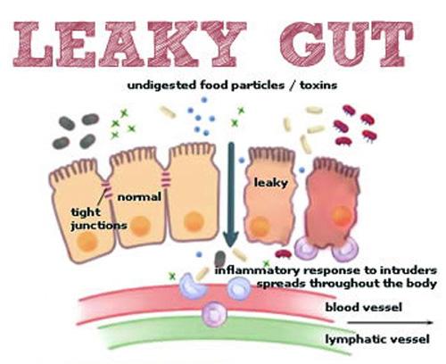 Qu'est-ce que Leaky Gut?