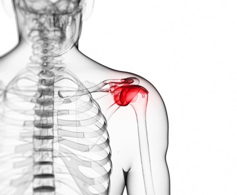How to Release a Frozen Shoulder - Sports Physiotherapy Montreal