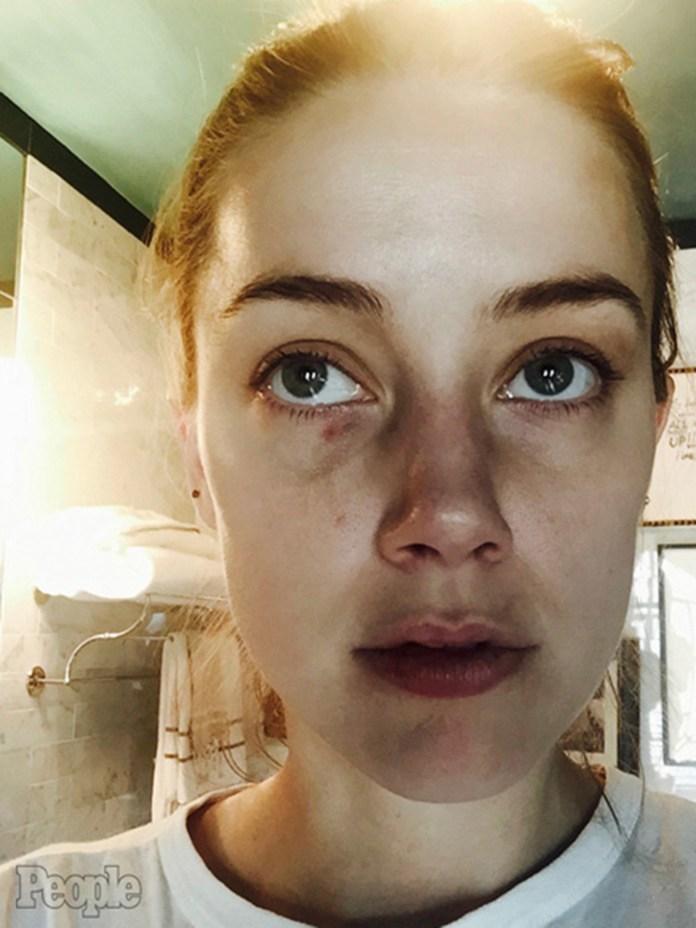 Amber Heard acusó a Johnny Depp de maltrato y mostró su rostro golpeado