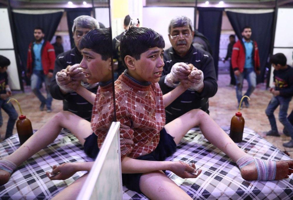 Un niño herido en un ataque reciente (AFP)