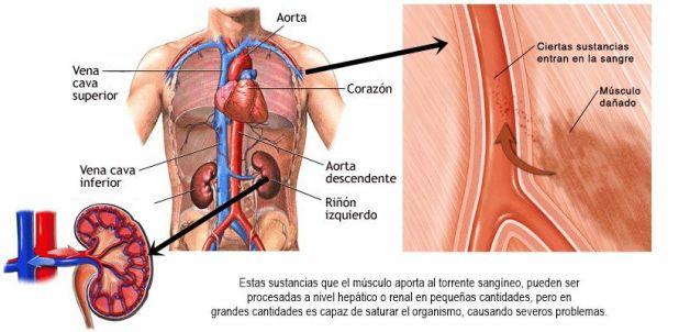 La ruptura de fibras musculares libera una proteína que puede dañar el riñón