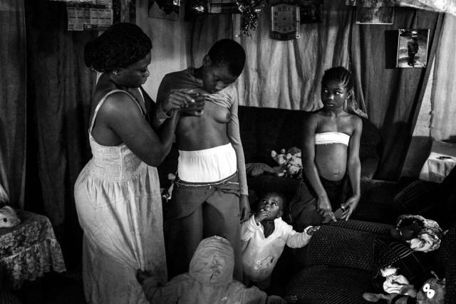 Banned Beauty – Belleza prohibida: en Camerún, la práctica del planchado de los senos para las niñas de 8 a 12 años de edad se lleva a cabo con la creencia de que esto retrasará la madurez y ayudará a prevenir las violaciones o los avances sexuales. (Heba Khamis, Egipto)