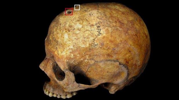 Los restos tenían un orificio en el cráneo (World Neurosurgery)