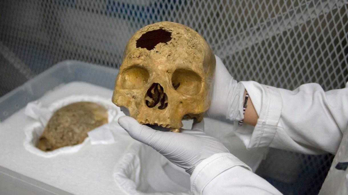Desde los restos óseos de un cráneo comienza el largo trayecto de identificación mediante la aproximación facial forense. (Foto: Archivo)