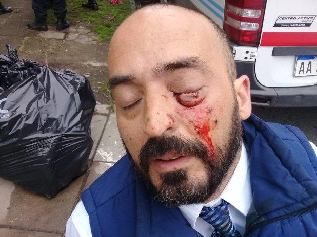 Javier, uno de los conductores heridos