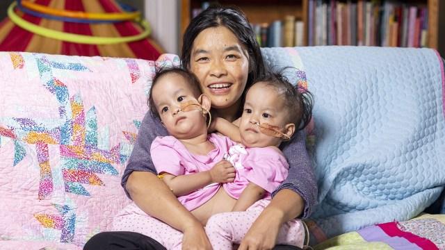 Bhumchu Zangmo abraza a sus siameses Nima y Dawa en Miracle sMiles Retreat en East Kilmore, Victoria (EFE / DANIEL POCKETT)
