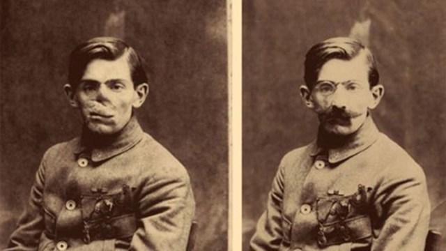 Un soldado antes y después de la colocación de una máscara esculpida, 1920, Anna Coleman Ladd papers, Archives of American Art, S.I.