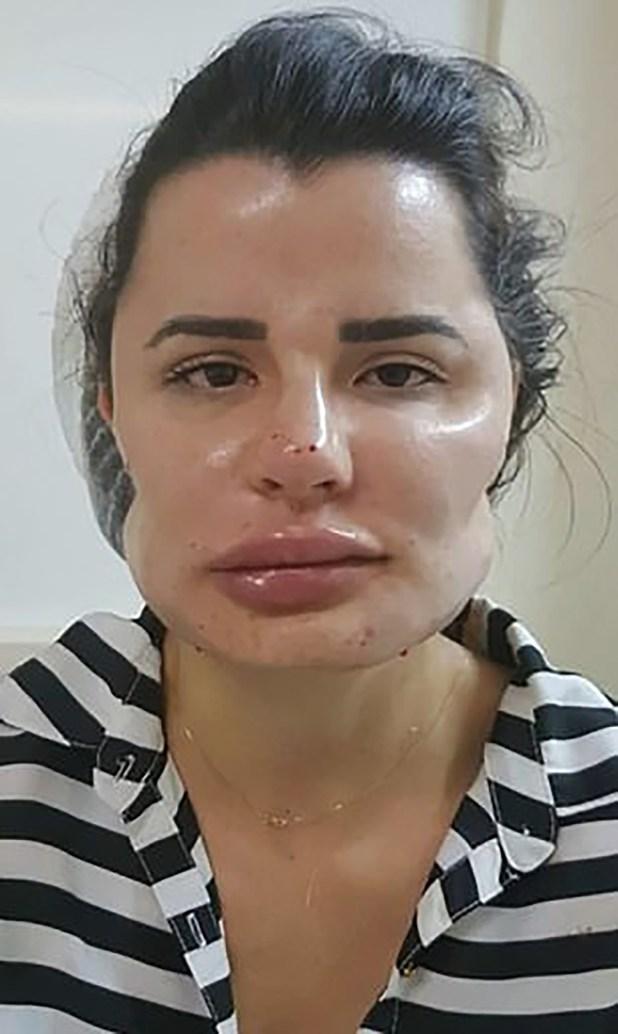 Una de las 40 víctimas que padecieron al médico de Goiania, en el centro de Brasil