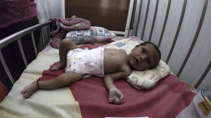 Un bebé desnutrido en Venezuela (AFP)