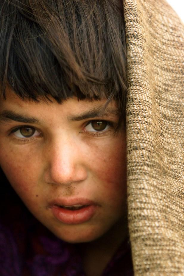 Habiba, de 12 años, espera para recibir tratamiento por osteomielitis a 60 kilómetros de Kabul (Afganistán), en octubre de 2001