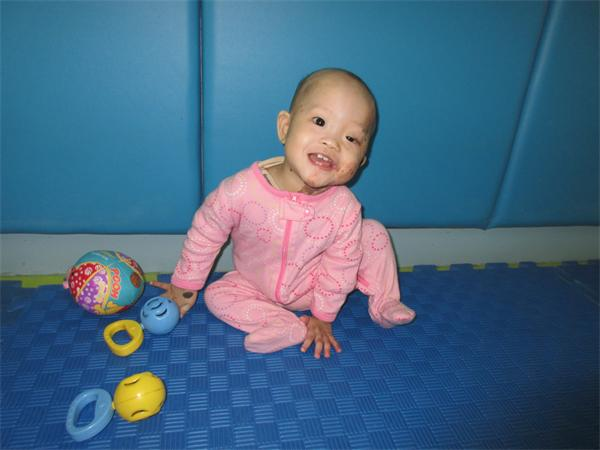 32712d1de She has cerebral dysplasia and a skin condition that covers much of her body.  She is designated by the CCCWA as a Special Focus child and is from one of  our ...