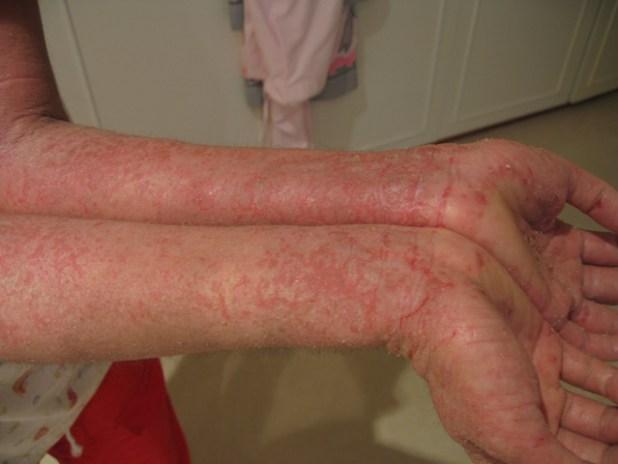 Eczema: Eczema Causes + 19 Ayurvedic Remedies For Eczema