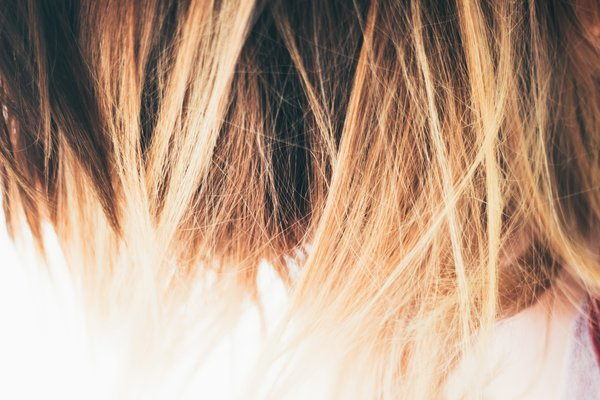 8 Foods For Hair Loss Ayurveda Swears By (Hair Loss Diet)