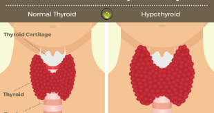 Ayurveda's Natural Treatments For Low Thyroid (Part 2)