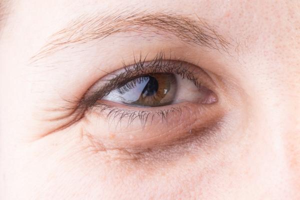 Eliminate Puffy Eyes Naturally With Ayurvedic Wellness ...