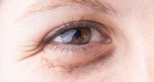 Puffy eyes, under eye bags and Ayurveda.