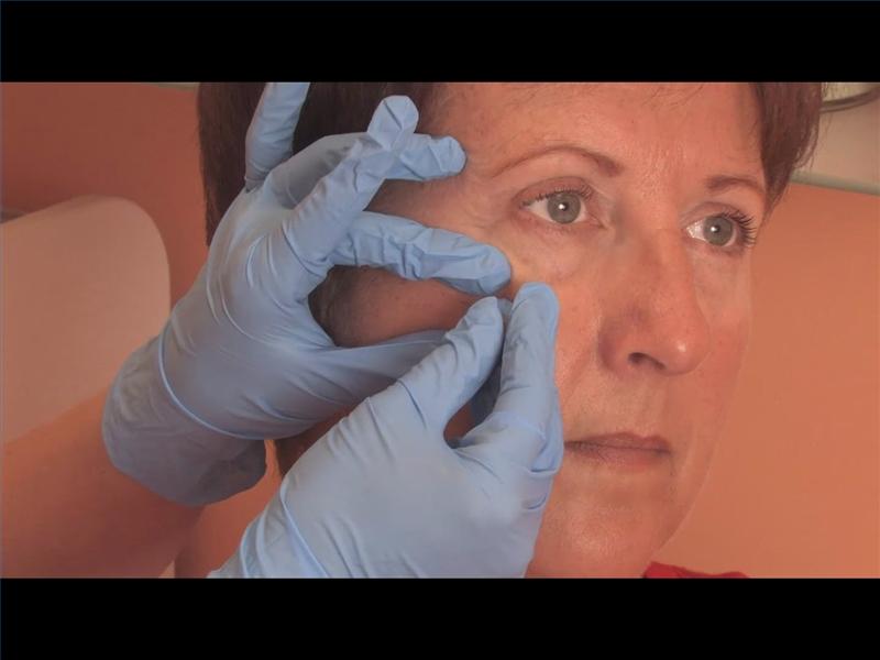 calcium deposits under eyes | Decorativestyle.org