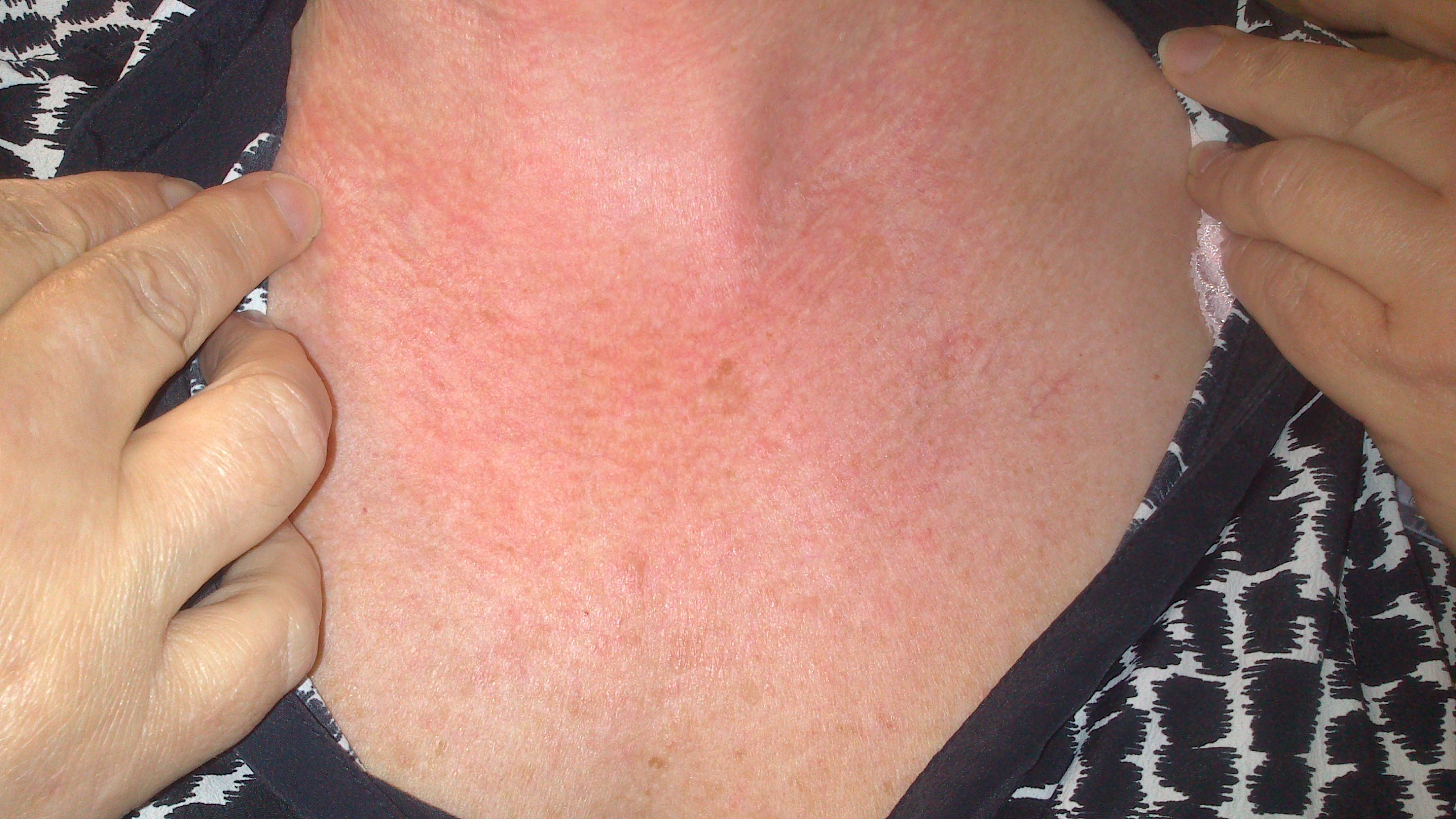 Rashes On Face Neck And Chest Pictures Photos