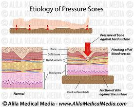 Alila Medical Media | Skin and Hair Images