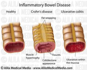 Alila Medical Media | Inflammatory bowel disease, labeled