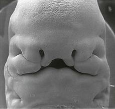 Development of the Face - Nose - Palate - Cleft Lip ...