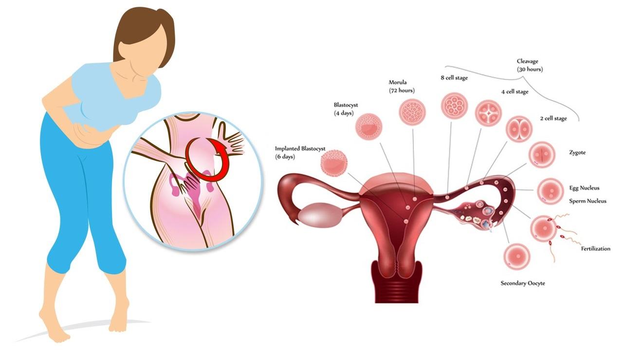 Ease your Menstruation | Girls Glamour