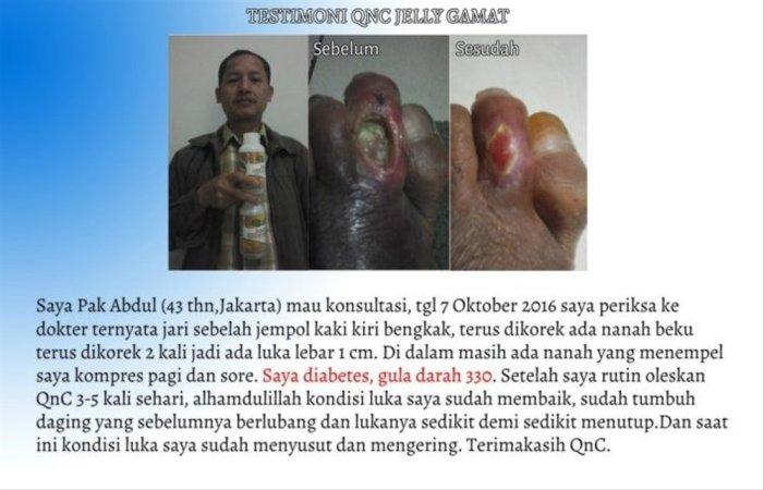 Image result for testi qnc untuk luka diabetes