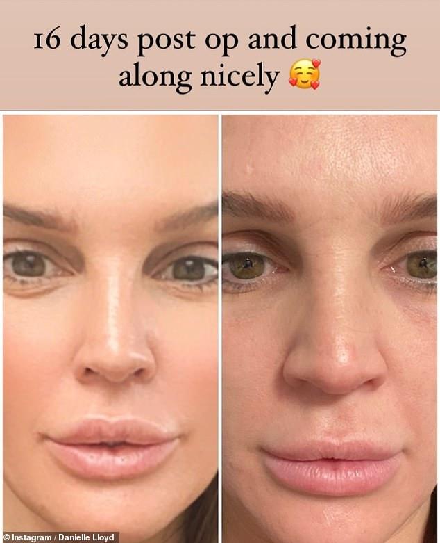 ¡Guauu!  Danielle Lloyd ha revelado los resultados de su cirugía de nariz solo 16 días después del procedimiento (en la foto antes y a la izquierda después del procedimiento)