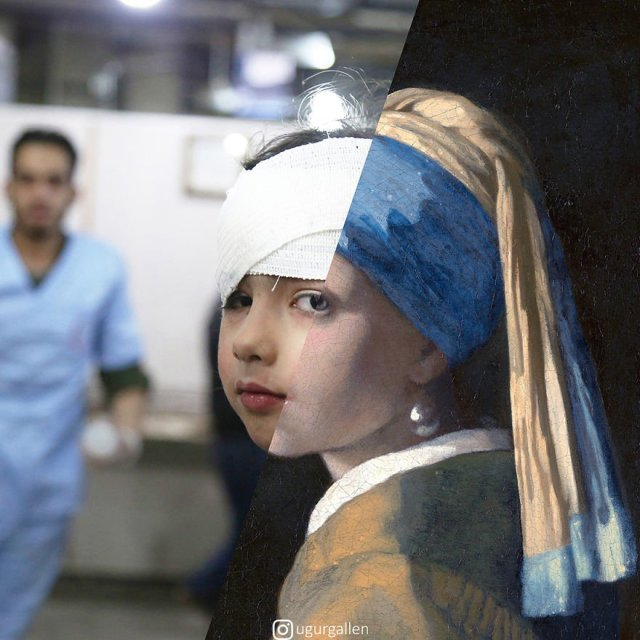 wounded Syrian girl
