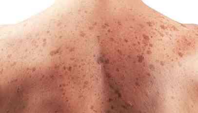 احذر.. هذا العلاج قد يصيبك بسرطان الجلد 1
