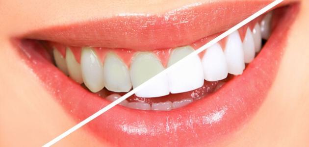 وصفة منزلية لساعد في تبييض الأسنان 8