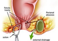 Treatment of Anal Fistula in Pakistan image