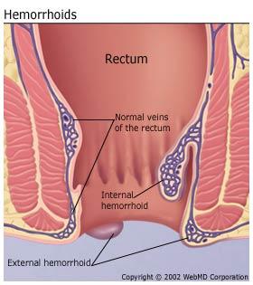 dr-sabeel-online-homeo-clinic-external-hemorrhoids-image