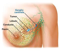 cancer mas comunes