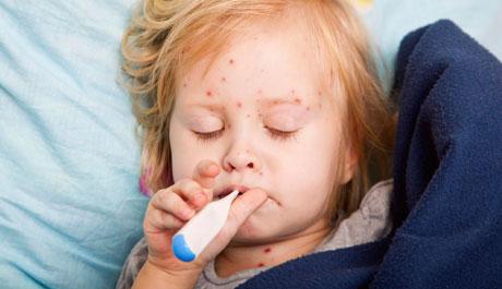 fiebre gripe