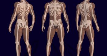 listado enfermedades huesos