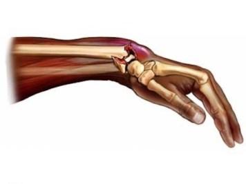 clasificacion tipos fractura muñeca