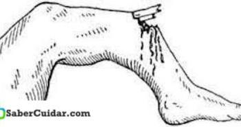 tratamiento medico fracturas abiertas
