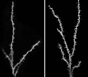 Las neuronas en los cerebros de personas con autismo no pasan por una poda normal durante la niñez y la adolescencia. Las imágenes muestran neuronas representativas de cerebros no afectados (izquierda) y cerebros de pacientes autistas (derecha); las espinas en las neuronas indican la posición de las sinapsis. (Imagen: Guomei Tang y Mark S. Sonders / Columbia University Medical Center)