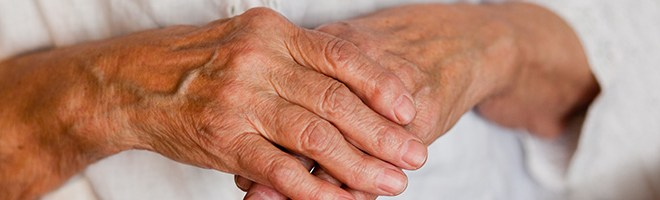 10 TOP NATURAL REMEDIES FOR ARTHRITIS JOINT PAIN