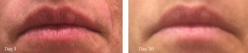Sabrina Collagen Rx Plus anti-aging collagen cream before and after pictures removes redness