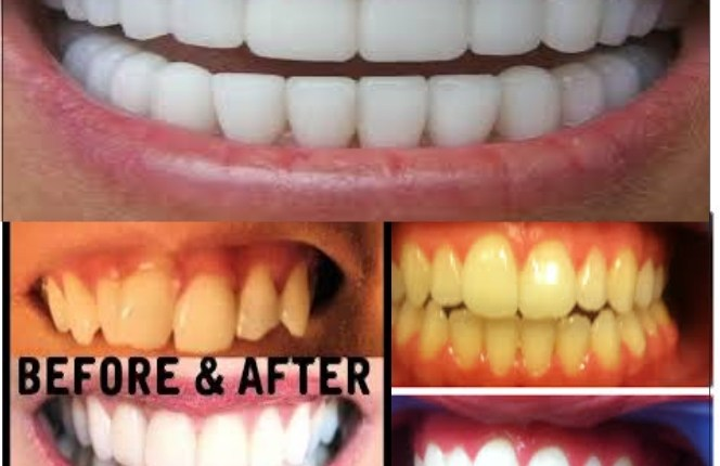Dental Tips: Home Remedies Whitening System To Whiten Your Teeth
