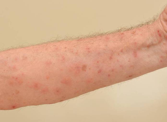 Red bumps on arms or pimples