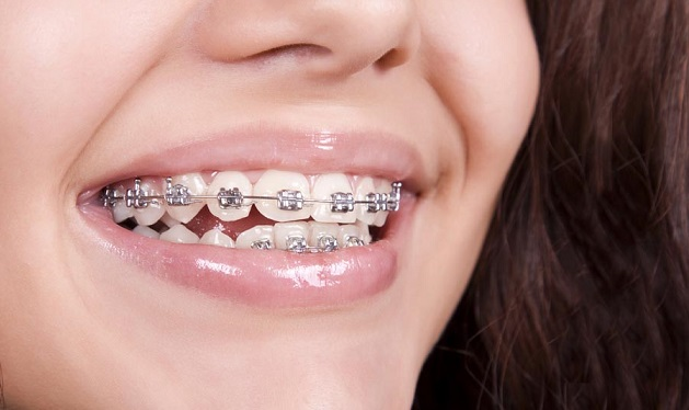 Gingivitis with Teeth Braces