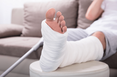 Healthy and Proper Care of a Fractured Bone