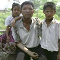 Explosive remnants of war survivors in Laos