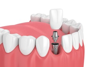 3d render of jaw with teeth and dental incisor implant over white background