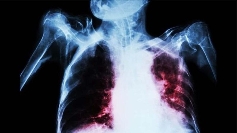 Augmentation des décès liés à la tuberculose, l'OMS tire la sonnette d'alarme